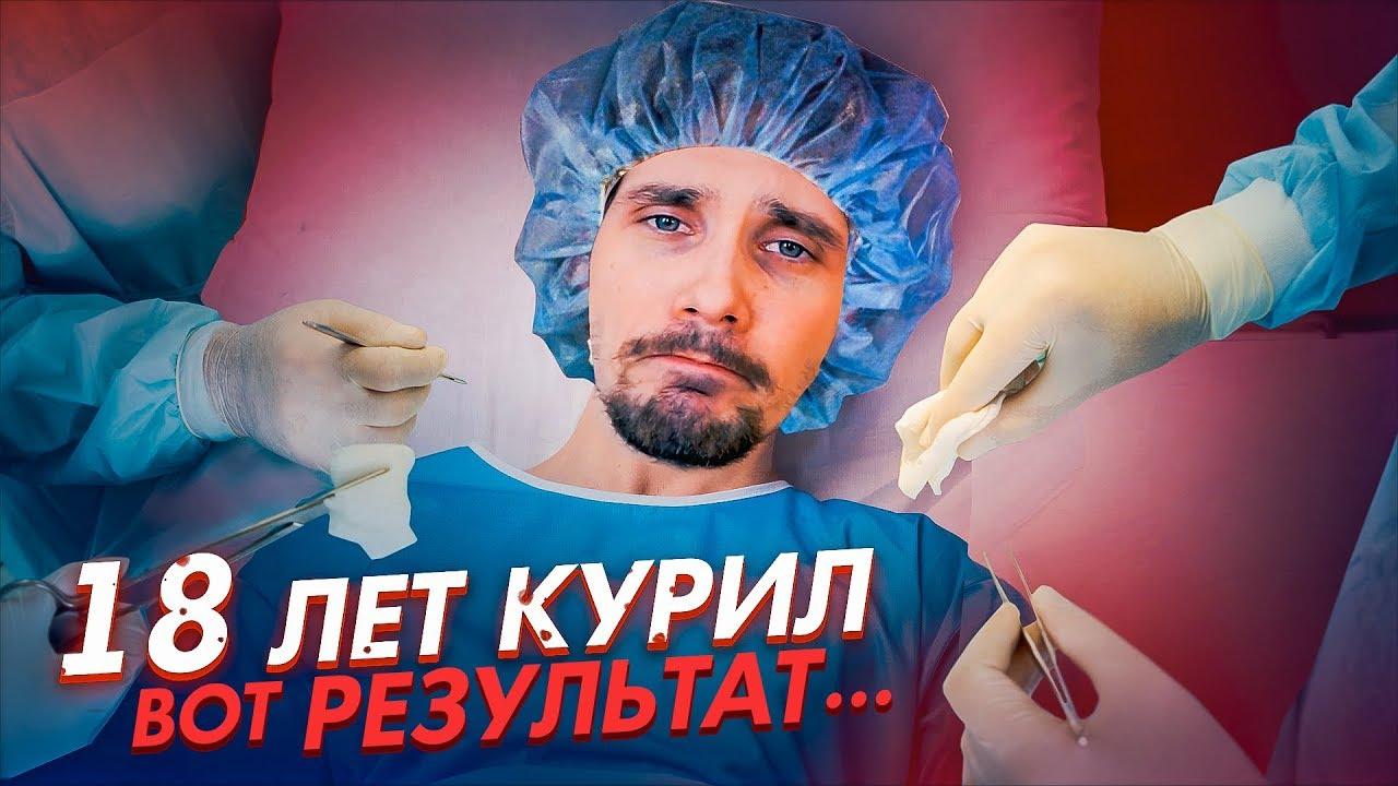 18 ЛЕТ КУРИЛ - ВОТ РЕЗУЛЬТАТ...