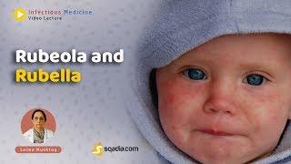 Download Rubeola and Rubella (Preview)| Infectious Medicine| sqadia.com