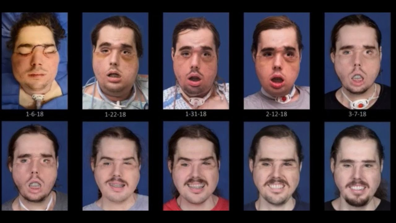 See The Remarkable Recovery Progression Of Face Transplant Patient Cameron Underwood Of Yuba City