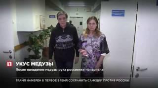 На россиянку в Индии напала медуза, женщина может лишиться руки