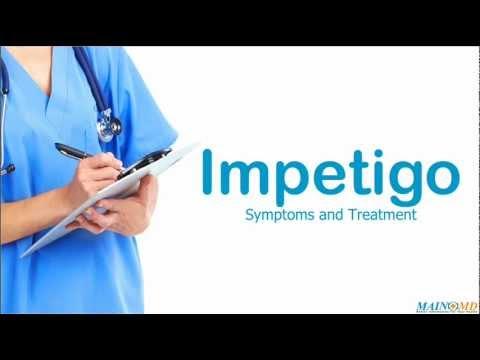 Impetigo ¦ Treatment and Symptoms
