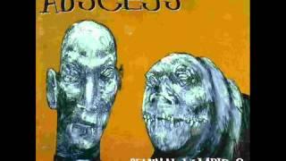 Abscess - Patient zero