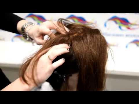 Установка системы замещения волос