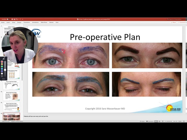 Eyebrow Hair Transplantation Presented by Dr. Sara Wasserbauer