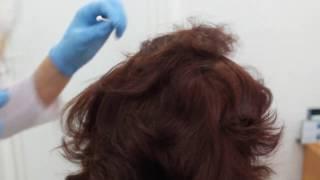 Криомассаж волосистой части головы