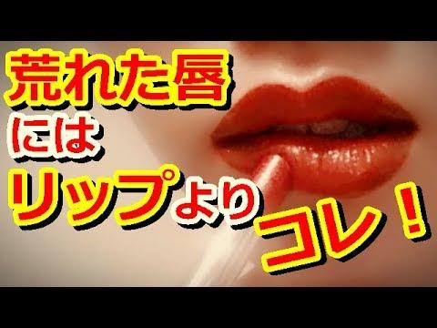 パックリ割れて痛い…荒れた唇を治すにはリップよりコレ