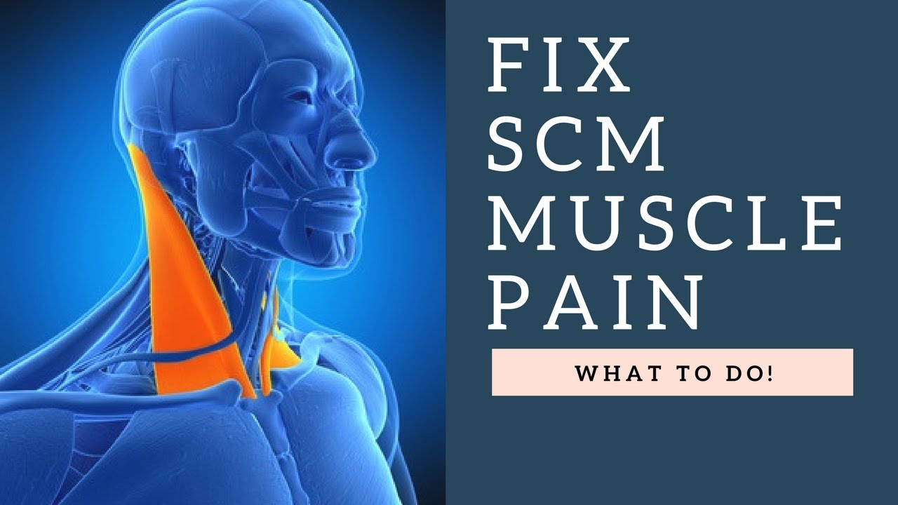 Fix Sternocleidomastoid Scm Muscle Neck Pain Headaches Jaw Pain