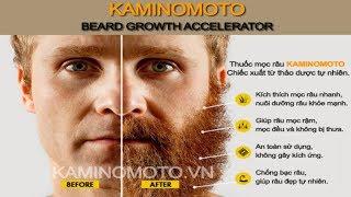 Cách nuôi râu quai nón đẹp