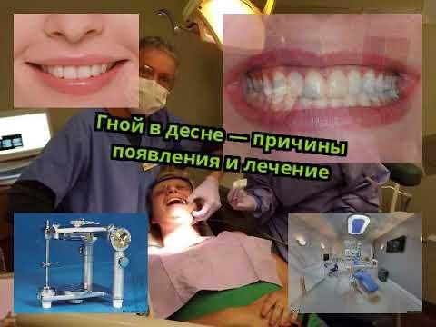Из десны идет гной но зуб не болит чем полоскать