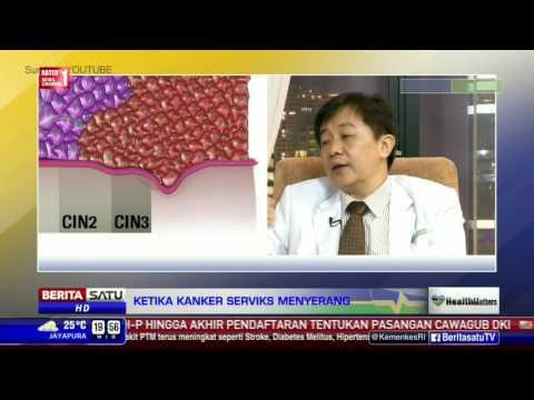 Kanker serviks adalah salah satu penyakit paling mematikan yang mengintai kaum Hawa. Agar terhindar .