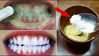 This method will make white and white-white yellowing such as milk in 3 minutes. Whitening teeth