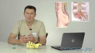 видео Вторичный стеноз позвоночного канала шейного отдела