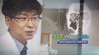 축농증(부비동염)의 치료 - 계명대 동산병원 이비인후과…