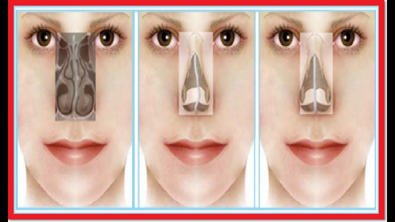 acomodar el tabique de la nariz