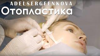 Отопластика   Пластическая операция   Операция на уши