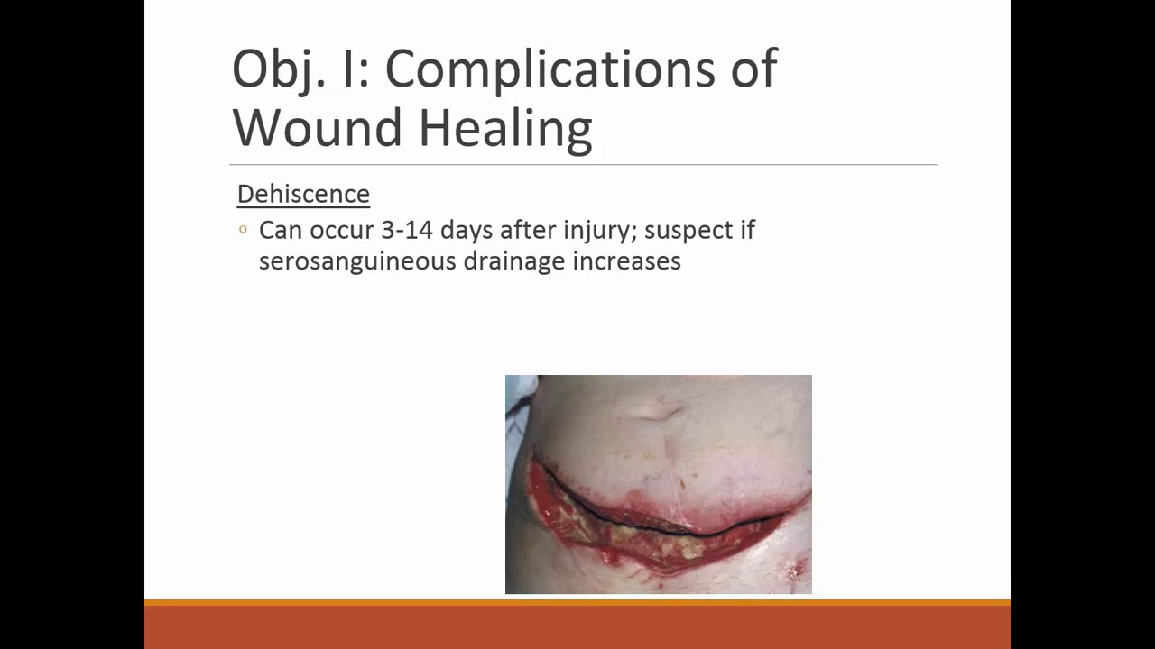 Skin Integrity And Wound Care Part 1 Unit 5 Nursing Fundamentals F18 Youtube