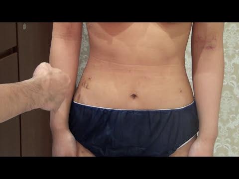 高須クリニック バスト脂肪注入豊胸手術後1週間の腫れ、経過、ダウンタイム、痛み 二の腕、お腹、背中、ウエスト、お尻、太ももから脂肪吸引しました