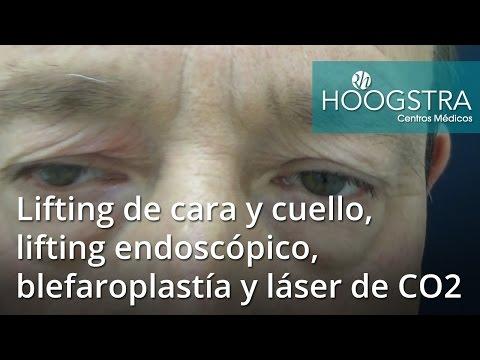 Lifting de cara y cuello, lifting endoscópico, blefaroplastía y láser de CO2 (16105)