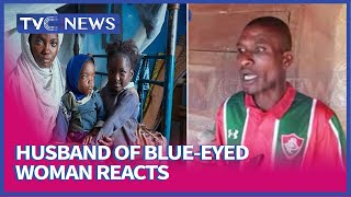 'I Did Not Abandon My Wife', Husband Of Blue-Eyed Woman Reacts