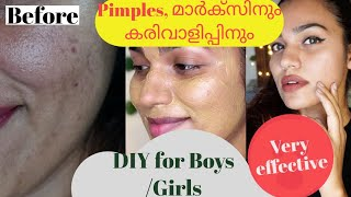 Boys and girls!DIY for Pimples, scars, Pigmentation,darkness around Neck