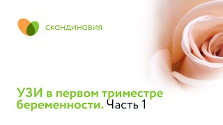 УЗИ в первом триместре беременности. Часть 1