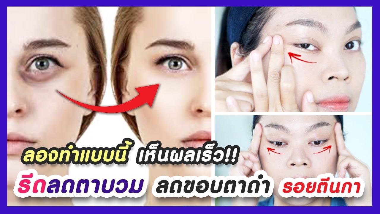 แชร์เทคนิคโปร!! รีดลดตาบวม แก้ปัญหาขอบตาดำ-ใต้ตาดำ ลดริ้วรอยตีนกา (ช่วยให้คิ้วไม่ตก ตาไม่ตก)