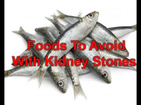 What Are The Foods To Avoid With Kidney Stones | Kidney Stones Diet Prevention