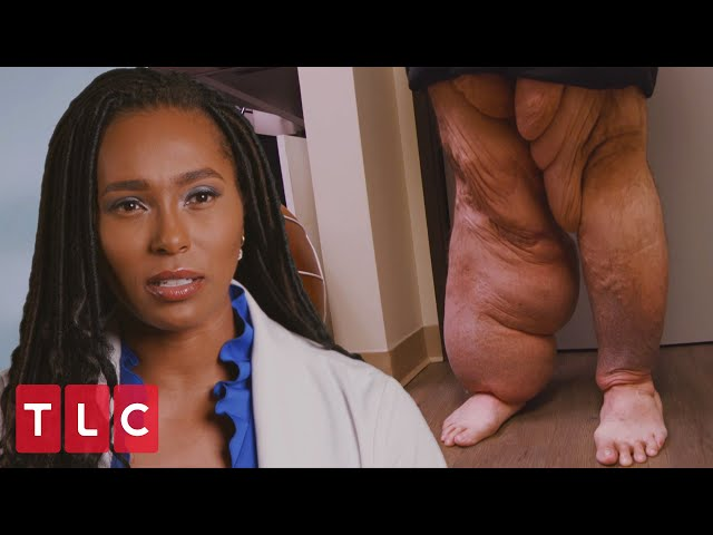 Ramon's Extreme Case of Lymphedema | My Feet Are Killing Me