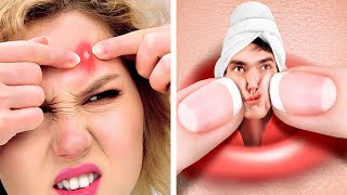If Pimple Was A Person    10 MINUTES OF RELATABLE FUNNY SITUATIONS