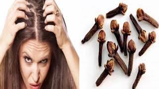 Karanfili Saçınıza Sürerseniz