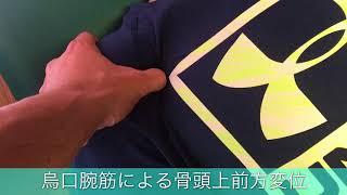 骨頭位置を変位させる烏口腕筋のリリース