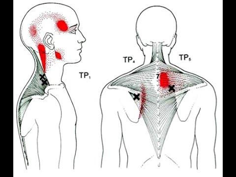 Боли при остеохондрозе шейного отдела: в голове, спине