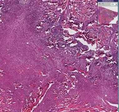 Histopathology Skin--Carbuncle - YouTube