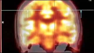 Transhumanism - Mankind 2.0