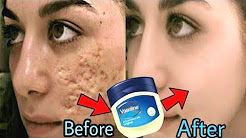 hqdefault - Is Vaseline Good For Acne Marks