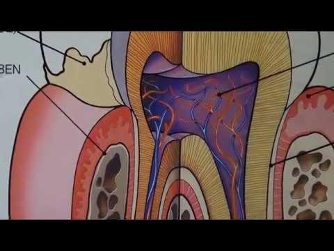 Лечение пульпита консервативным методом в постоянных зубах с неоконченным формированием корней