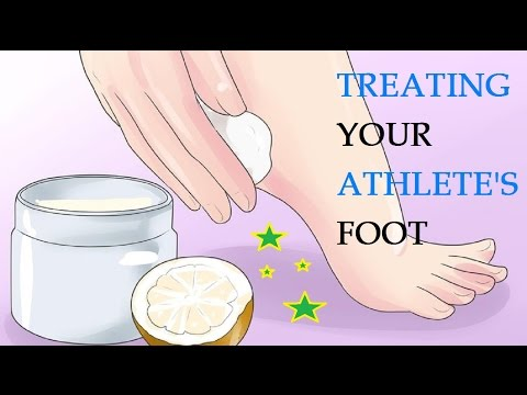 How to Treat and Prevent Athlete's Foot | Treating Your Athlete's Foot
