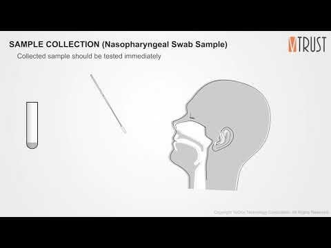Test Procedure for COVID-19 ANTIGEN RAPID TEST
