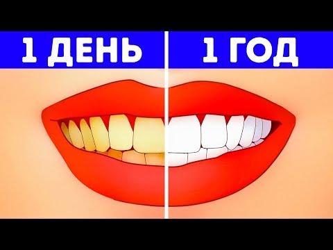 Когда чищу зубы болят зубы