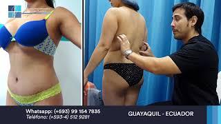 Lipoabdominoplastia - Recupera la juventud de tu cuerpo luego de embarazos (Mommy Makeover)