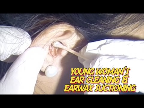 Young Woman's Ear Cleaning & Earwax Removal by Suctioning