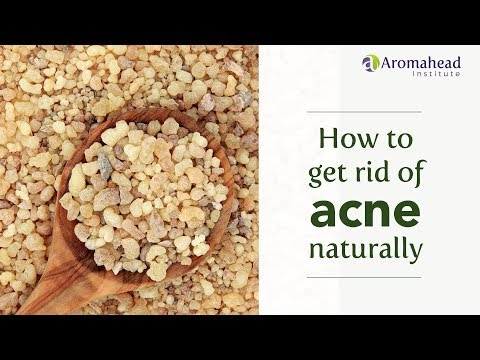 How to Get Rid of Acne Naturally with Essential Oils