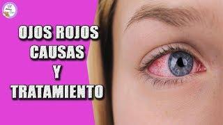 Remedios y oscuros oculares causas