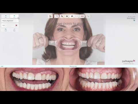 Using 3Shape Smile Design with the Dental System RealView Engine