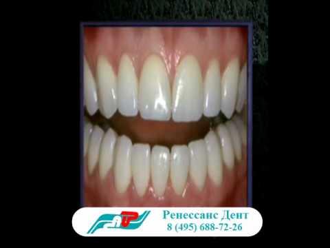 Керамические (фарфоровые) виниры на зубы. Стоимость виниров.