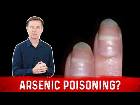 Identify Arsenic Poisoning Through Your Nails