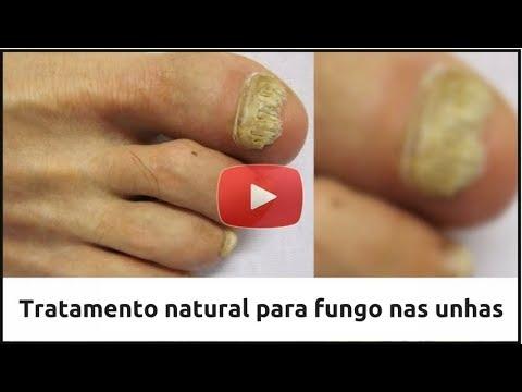 Descubra Agora em [2018] Como Eliminar O Fungo Nas Unhas Do Pé Ou Da Mão