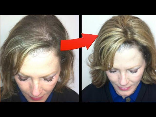 Where To Buy Enchantop Human Hair Toppers Gorgeous Strandz