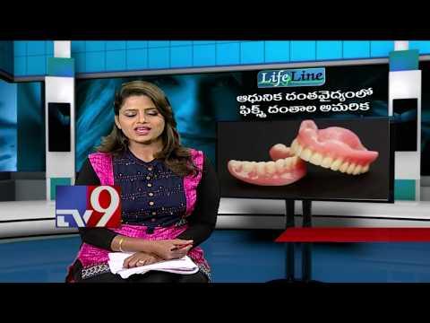 Dental Implants || Modern Treatment || Life Line - TV9