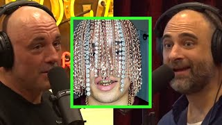 Rapper Has Gold Chains Implanted Into Scalp